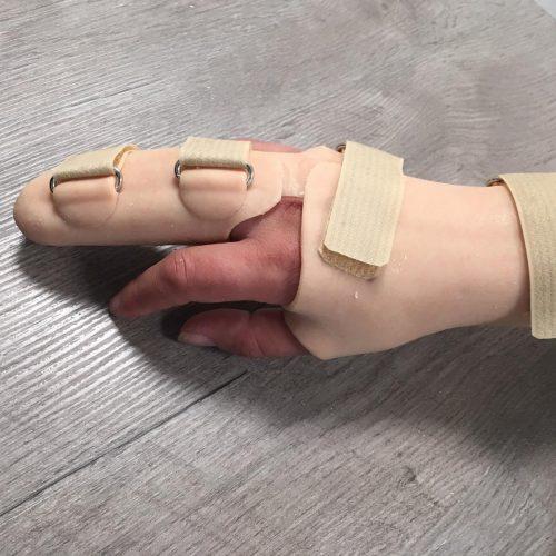 orthese | Bekkers Orthopedie Technieken