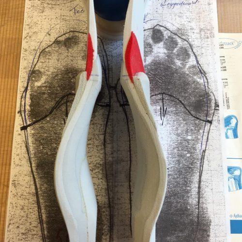 steunzool | Bekkers Orthopedie Technieken